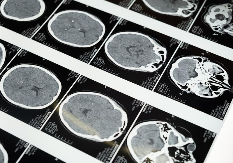 Brain Injury Personal Injury Lawyer